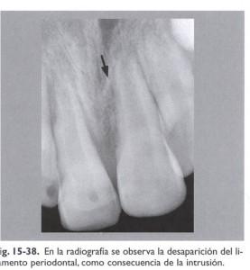 Radiografía Intrusión