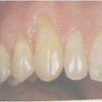 dentina expuesta 1