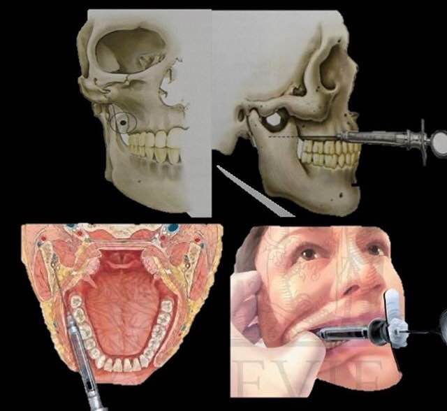 OdontoBlog » Anatomía