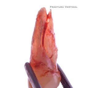fractura-dental